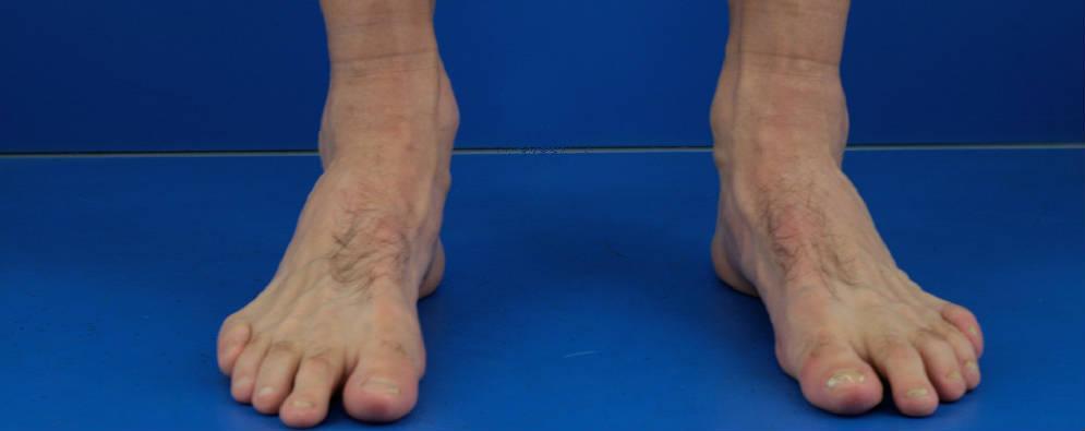 des pieds, des yeux, des épaules (etc.)